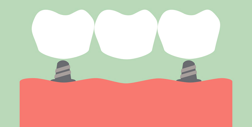 clip art showing how a dental bridge works